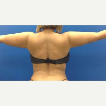 35-44 year old woman treated with Liposculpture of Arms, bra rolls, waist after 1984417