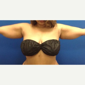35-44 year old woman treated with Liposculpture of Arms, bra rolls, waist 1984417