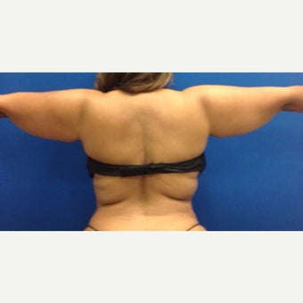 35-44 year old woman treated with Liposculpture of Arms, bra rolls, waist before 1984417