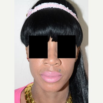 25-34 year old woman treated with Rhinoplasty before 1696240