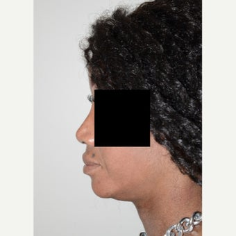 25-34 year old woman treated with Rhinoplasty 1696240
