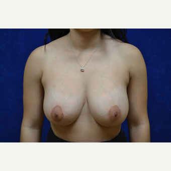 25-34 year old woman treated with Breast Lift with Breast Augmentation after 3663596