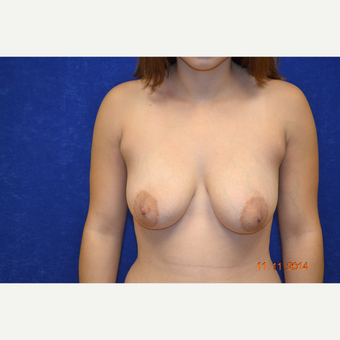 25-34 year old woman treated with Breast Lift with Breast Augmentation before 3663596