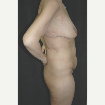 25-34 year old woman treated with Body Lift before 3181666