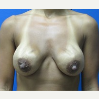 Breast Implant Revision 35 year old woman before 3371209