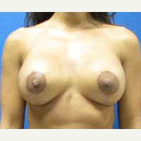 Breast Implant Revision 35 year old woman after 3371209