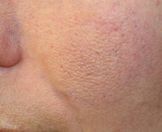 Laser Treatment of Acne Scars on Cheek