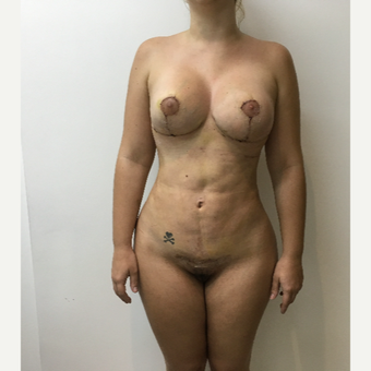 25-34 year old woman treated with Smart Lipo after 3804237