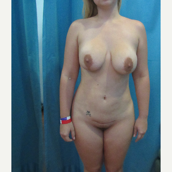 25-34 year old woman treated with Smart Lipo before 3804237