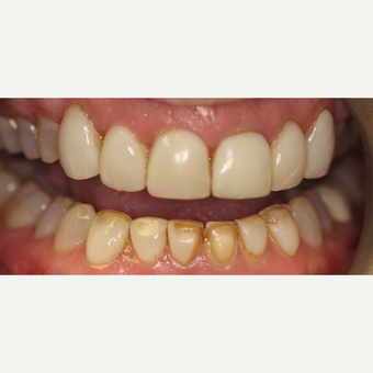 45-54 year old woman treated with Porcelain Veneers before 3432686