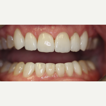 45-54 year old woman treated with Porcelain Veneers after 3432686