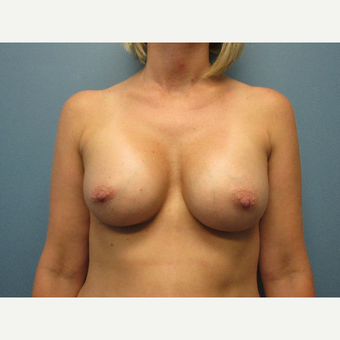 25-34 year old woman treated with Breast Augmentation after 3724505