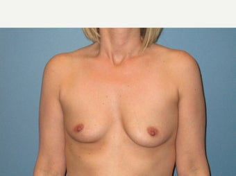 25-34 year old woman treated with Breast Augmentation before 3724505