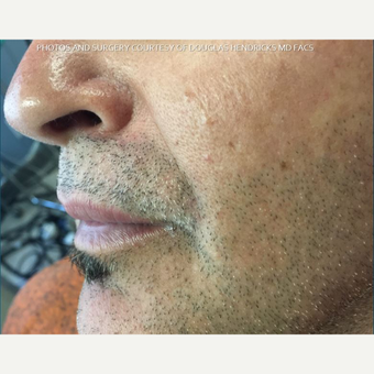 45-54 year old man treated with Mole Removal after 3625016
