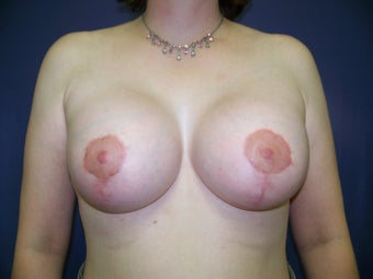 Breast Augmentation after 99646