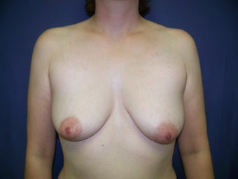 Breast Augmentation before 99646