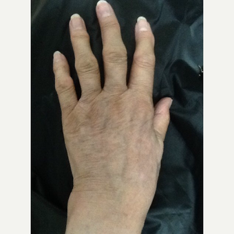 75 and up year old woman treated with Radiesse for hand rejuvenation after 3287069