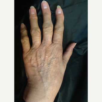 75 and up year old woman treated with Radiesse for hand rejuvenation before 3287069