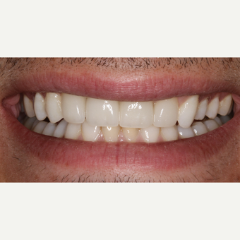 35-44 year old man treated with Dental Implants after 3211850