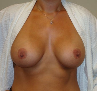 Breast Implants after 344234