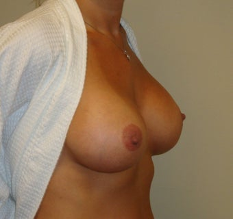 Breast Implants 344234