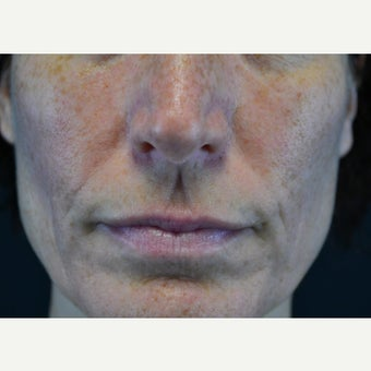 45-54 year old woman treated with Restylane before 2255607
