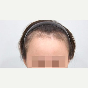 25-34 year old woman treated with Forehead Reduction before 2006869