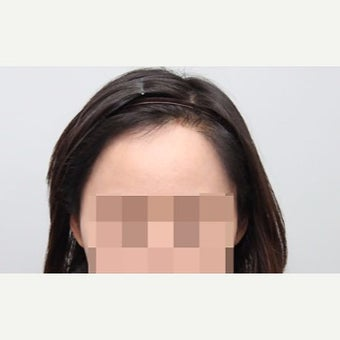 25-34 year old woman treated with Forehead Reduction after 2006869