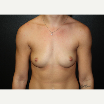 18-24 year old woman treated with Breast Augmentation-IDEAL Saline Implant before 3037349