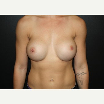 18-24 year old woman treated with Breast Augmentation-IDEAL Saline Implant after 3037349