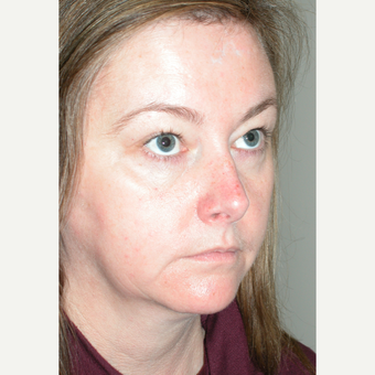 45-54 year old woman treated with Facelift Revision before 3154214