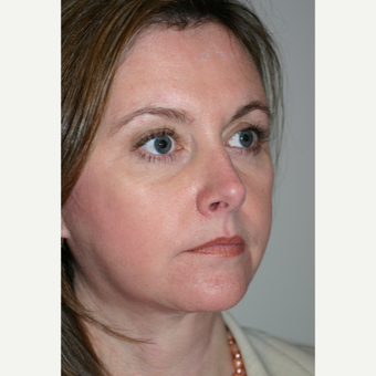 45-54 year old woman treated with Facelift Revision after 3154214