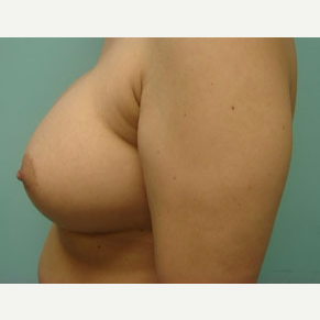 35-44 year old woman treated with Breast Augmentation after 3168054