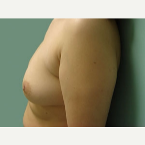 35-44 year old woman treated with Breast Augmentation before 3168054