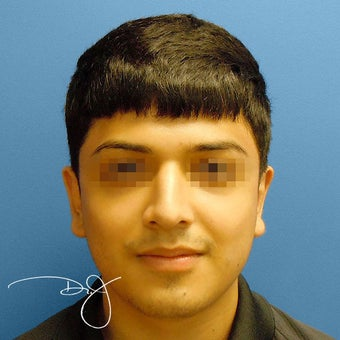 Otoplasty  after 864913