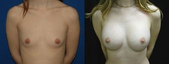 30 year old woman treated with Breast Augmentation before 2990473