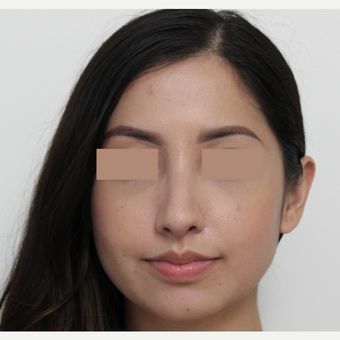 18-24 year old woman treated with Rhinoplasty after 3366365