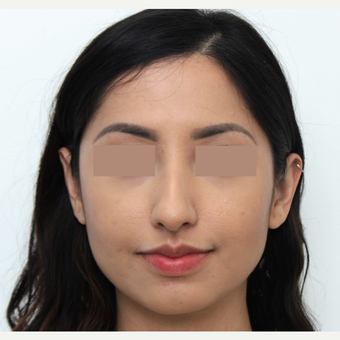18-24 year old woman treated with Rhinoplasty before 3366365