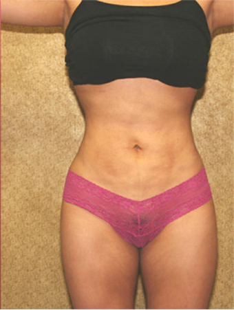 Tumescent Liposuction after 304336