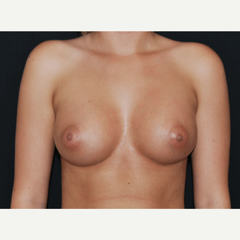 25-34 year old woman treated with Breast Implants after 3650734