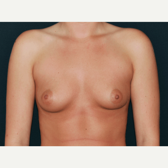 25-34 year old woman treated with Breast Implants before 3650734
