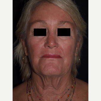 65-74 year old woman treated with Facelift before 3082355