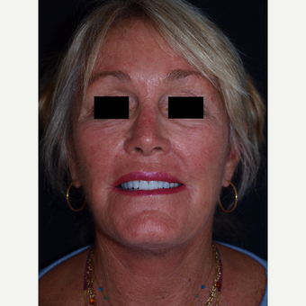65-74 year old woman treated with Facelift after 3082355