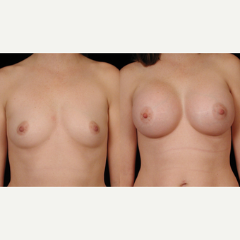 35-44 year old woman treated with Breast Implants before 3659740