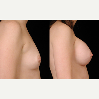 35-44 year old woman treated with Breast Implants after 3659740
