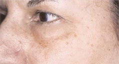 Laser Skin Resurfacing before 1405719