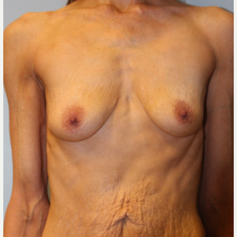 45-54 year old woman treated with Breast Augmentation before 3570856