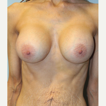 45-54 year old woman treated with Breast Augmentation after 3570856