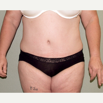 45-54 year old woman treated with Tummy Tuck after 3191829