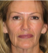 62 year old woman treated with Facelift before 3282883
